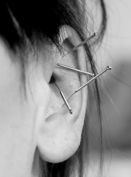 ear-acupuncture-test3_resize